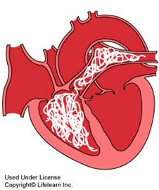 cartoon heartworm diagram